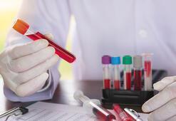 İmmünoloji nedir, neye bakar Alerji ve bağışıklık sistemi hastalıkları doktoru hangi hastalıklara bakar