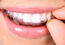 Ortodonti nedir, neye bakar Ortodonti bölümü doktoru (ortodondist) hangi hastalıklara bakar