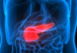 Pankreas İltihabı nedir, belirtileri nelerdir Pankreas vücüdumuzun hangi bölgesinde yer alıyor