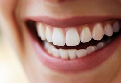 Dişe lamina uygulamaları ile ilgili merak edilenler