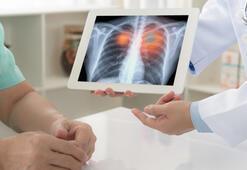 Akciğer kanserinde kişiye özel tedavi şart