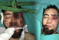 Yüzüne demir saplanan genci, itfaiye ve plastik cerrahlar kurtardı