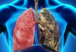 KOAH nedir KOAH hastalığının belirtileri nelerdir