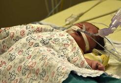 Muhammet bebeğin kalbi 100 dakika durdurularak ameliyat edildi