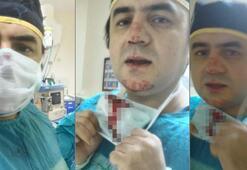 Doktorun burnunu kıran o saldırgan tutuklandı