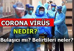 Corona virüsü bulaşıcı mı Koronavirüs hangi durumlarda bulaşır İşte Coronavirüs hakkında merak edilen her şey