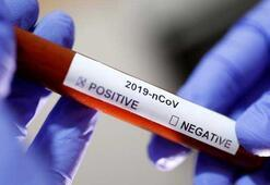 Coronavirüs için şoke eden açıklama Ölü sayısı hızla artıyor...