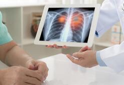 Akciğer kanserinde radon etkisi