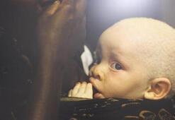 Afrikalı albinoların dramı sanatseverlerle buluştu