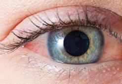 Göz sulanması neden olur, nedenleri nelerdir Göz yaşarmasına ne iyi gelir Göz sulanması için bitkisel tedavi