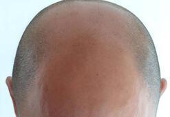 Saç ekiminde 3 yeni yöntem