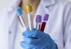 Avrupada koronavirüs vaka ve ölü sayısı artmaya devam ediyor