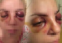 Şizofren hastası kadın gözlerini oymaya çalıştı