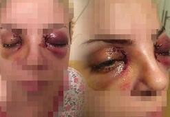 Dehşeti yaşadı Şizofren hastası kadın gözlerini oymaya çalıştı