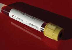 Latin Amerika ülkelerinde corona virüs vaka sayısı 151 oldu