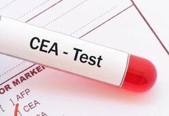 Cea Karsinoembrioyonik Nedir Cea Kaç Olmalı Yüksekliği Ve Düşüklüğü Nedenleri