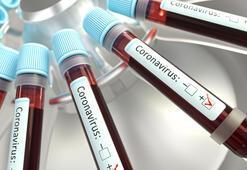 Son dakika haberler: Ruslar dünyaya duyurdu Corona virüs ilacı geliştirildi