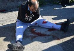 Polisi yüzünden yaralayan şahıs etkisiz hale getirildi