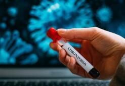Bakan Koca yayınladı: Bugün corona virüste kaç kişi öldü, ne kadar Testi yapıldı (20 Nisan) Corona virüs Vaka sayısı ve Ölü sayısı Bugün kaça yükseldi