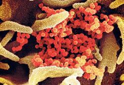 'Biyolojik ajanlara karşı plan şart'