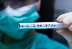 Corona virüs belirtileri nedir Yeni bir araştırmaya ortaya çıktı İşte gün gün corona virüs belirtileri...