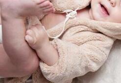 Bebeklerde Kalça Çıkığı Belirtileri Neler Kalça Çıkığı Nasıl Anlaşılır