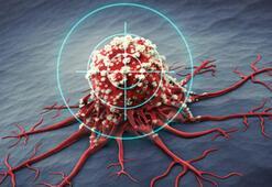 Kanser nasıl ortaya çıkar Kanser hücresinin özellikleri