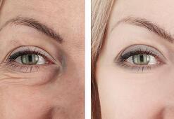 Vitamin açısından zengin göz çevresi kırışıklarını gideren krem tarifi