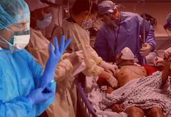 Son dakika haber | ABDdeki doktor anlattı: Daha önce gördüğüm hiç bir şeye benzemiyor