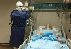 İmmün plazma durumu ağır bir hastaya uygulandı İlk kez görüntülendi...