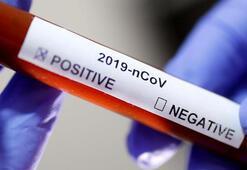 Corona virüs laboratuvardan mı çıktı ABDden çelişkili cevap