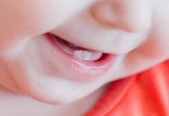 Diş çıkarma dönemindeki bebekler nasıl rahatlatılır