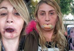 Dolgu yapılan dudağını kaybetmişti Artık yemek yiyebiliyor