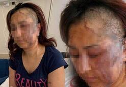 Boşanmak isteyen kadına eşi kezzapla saldırdı