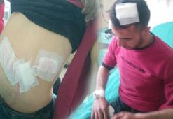 Karsta ayının saldırısına uğrayan genç yaralandı
