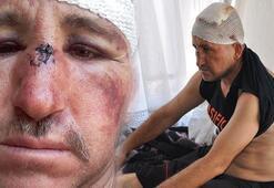 Antalyada taciz iddiasıyla pusu kurulup dövülen adam ilk kez konuştu