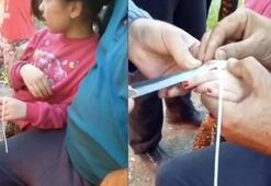 Parmağını sıkıştıran küçük kıza böyle müdahale ettiler