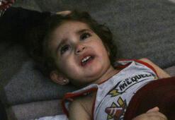 Kansere yakalanan 2 yaşındaki İdlibli Lujeyn tedavi için yardım  bekliyor