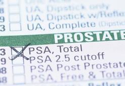 Erkeklerde PSA testi ne işe yarıyor - PSA testi neden yapılır