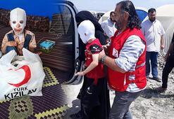 Vücudu yanan Suriyeli Halidin tedavisi Türkiyede yapılacak