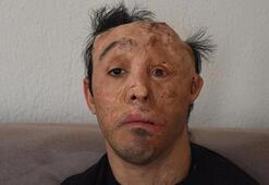 Mehmet Alinin ameliyatlarına, corona virüs engeli