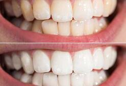 Dişlerin sararmasının sebebi nedir