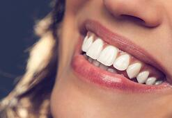 Diş beyazlatırken bunlara dikkat edin