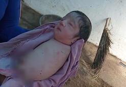 Hindistan'da bebek kolları ve bacakları olmadan doğdu