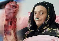 Trabzon'da 3 köpeğin saldırısında uğrayan kadının hayati tehlikesi sürüyor