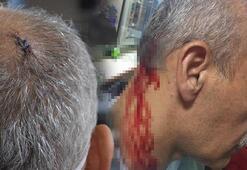 Araba çarptı diye ihbarda bulundu, doktora saldırdı