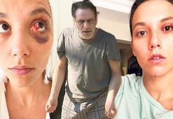 Kan çanağına dönmüş gözü ve morarmış gözaltı fotoğrafı da mı yalan