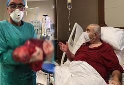 Karnından 3 bebek büyüklüğünde tümör çıktı