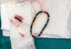 İstanbulda şok eden olay Karın ağrısıyla hastaneye giden çocuğun midesinden...