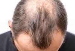 Corona virüs bu sefer saç dökülmesini artırdı